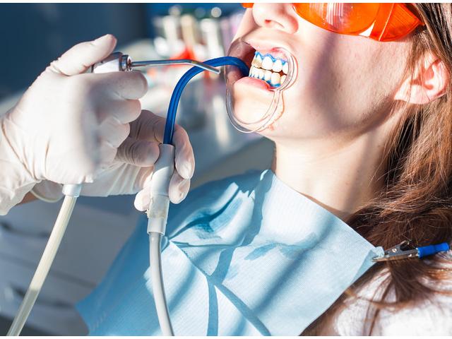Najbolji zubar novi sad