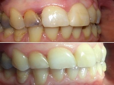 Полирање зуба пре и после
